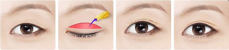 平行双眼皮,或伴随开眼角,可达到芭比眼效果    点击咨询    shhm欧式图片